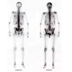 Bone Scan Whole Body